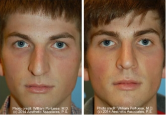 Asymmetric Nose Rhinoplasty
