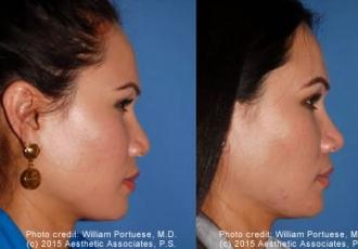 Dorsal Onlay Grafts / Implants Rhinoplasty