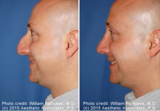 Down-Turned Tip Nose Rhinoplasty