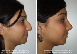 Ethnic Nose Rhinoplasty