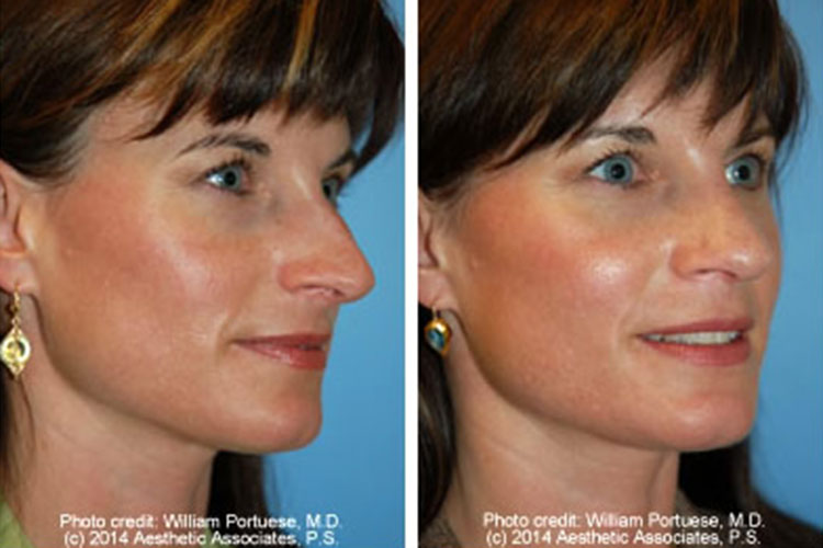 Asymmetrical Tip Before and After Photo Gallery - Nose ...