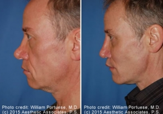 Flat Nose Rhinoplasty