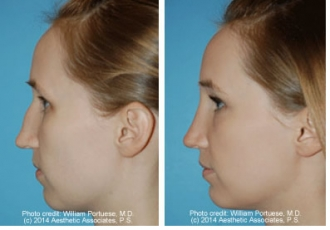 Low Bridge/Glabella Rhinoplasty
