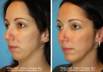 Rhinoplasty & Chin Implant