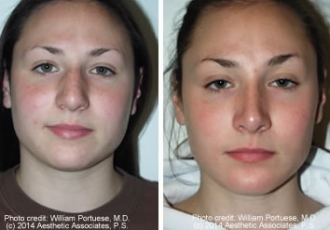 Wide Nasal Bone Rhinoplasty