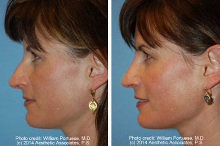 rhinoplasty patient from Seattle WA